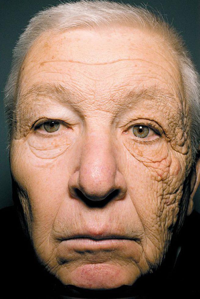 El rostro de Bill McElligott, de 69 años expuesto a la radiación solar en una mitad de la cara, con arrugas y manchas localizadas.